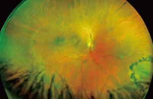 広角眼底カメラの性能 写真1